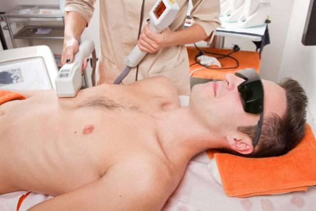 zabieg depilacji laserowej u mężczyzny